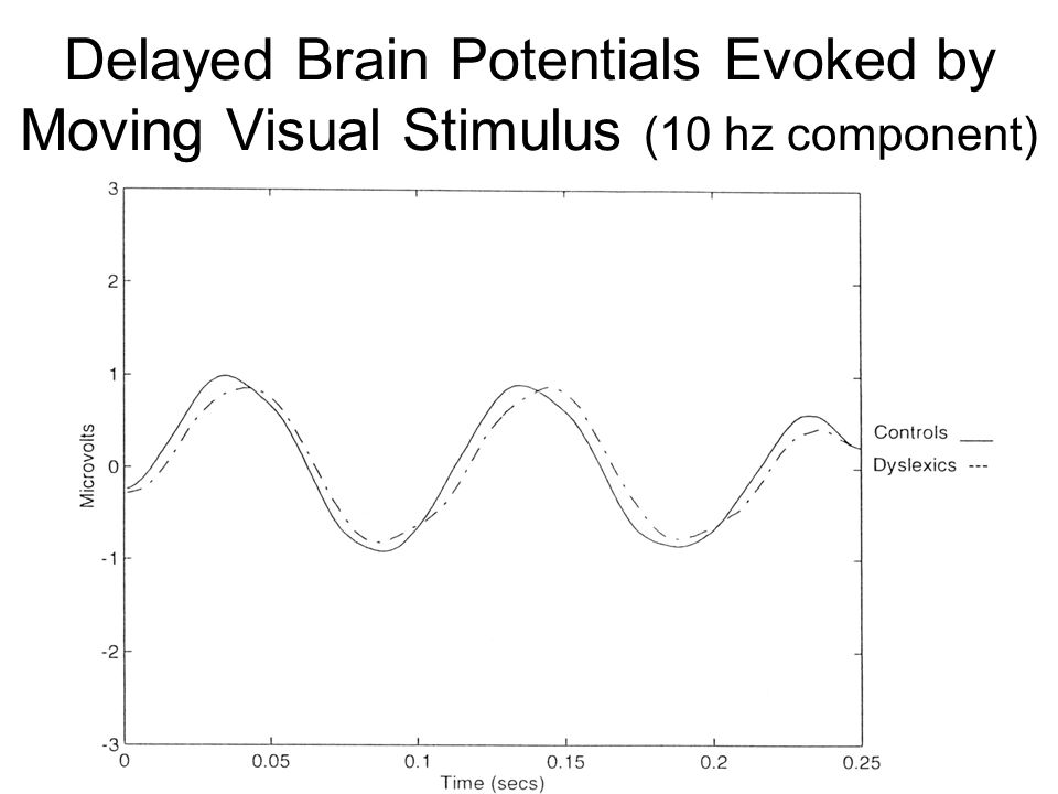 Delayed Brain Potentials Evoked by Moving Visual Stimulus (10 hz component)
