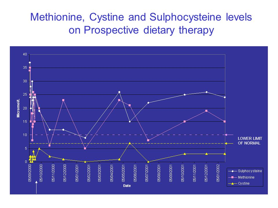 Urine Sulphite negative
