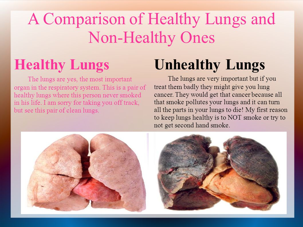 Exercise and Lung Health | American Lung Association