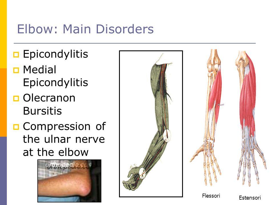 Elbow: Main Disorders Epicondylitis Medial Epicondylitis