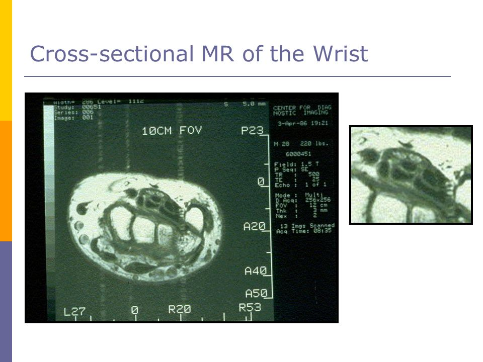 Cross-sectional MR of the Wrist