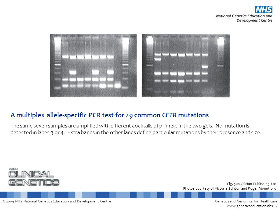 A multiplex allele-specific PCR test for 29 common CFTR mutations
