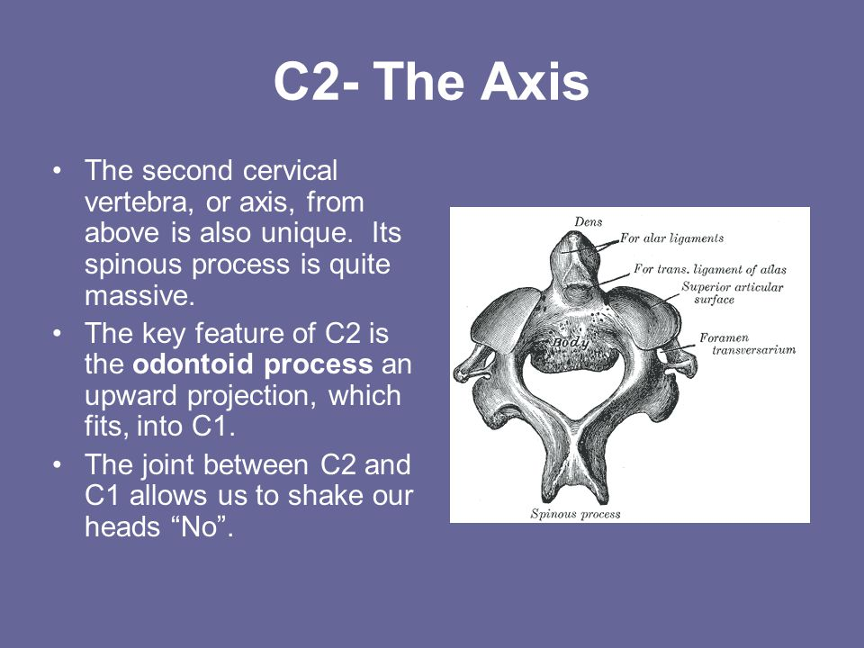 C2- The Axis The second cervical vertebra, or axis, from above is also unique. Its spinous process is quite massive.