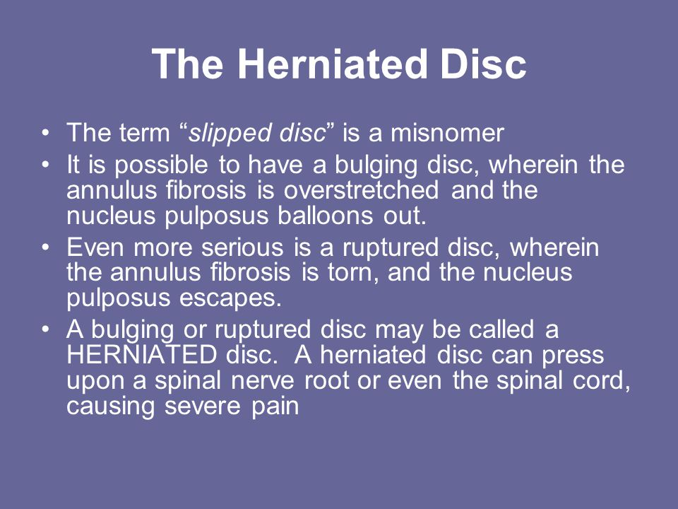 The Herniated Disc The term slipped disc is a misnomer