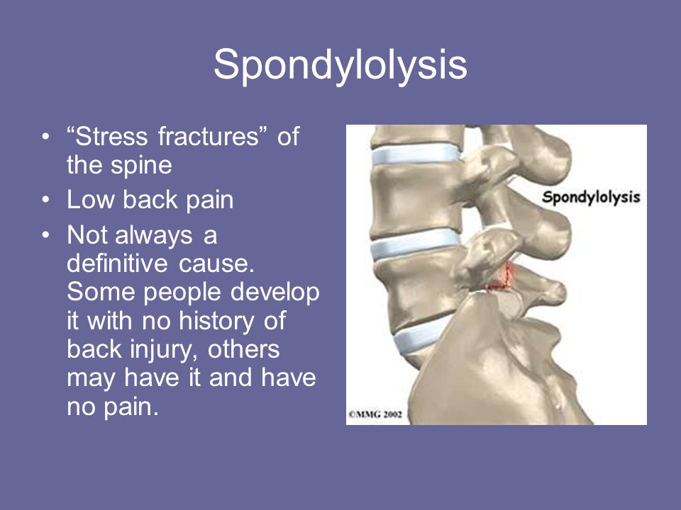 Spondylolysis Stress fractures of the spine Low back pain