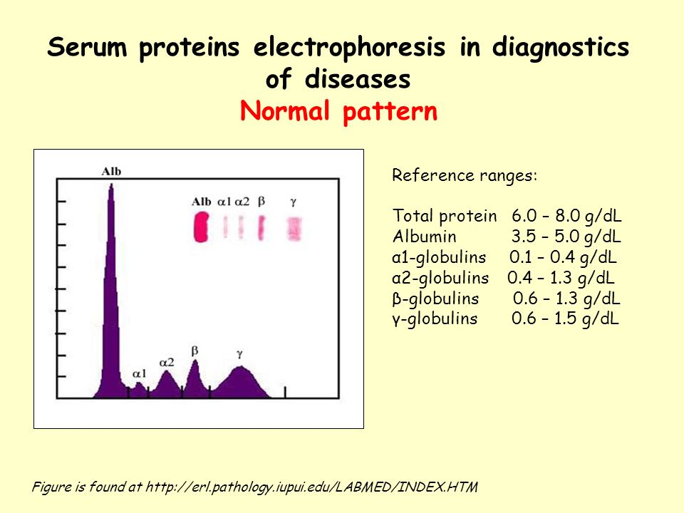 practical for electrophoresis of serum protein Electrophoresis is a laboratory method fundamental to the diagnosis and management of plasma cell disorders serum protein electrophoresis (spep) is commonly used to detect the presence of circulating monoclonal proteins urine protein electrophoresis (upep) is used to detect the presence of.