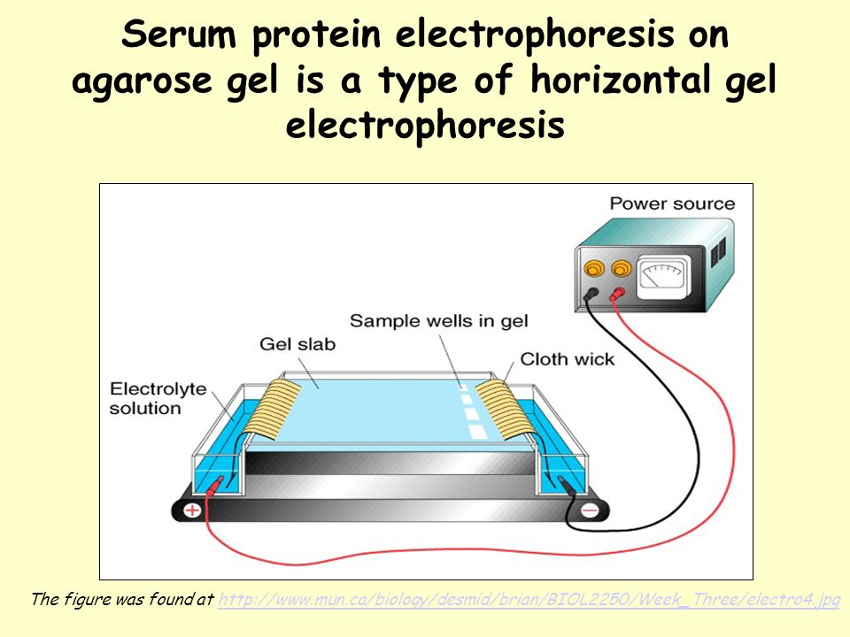 practical for electrophoresis of serum protein Protein electrophoresis is a method for additional information about a specific protein because of practical serum protein electrophoresis.