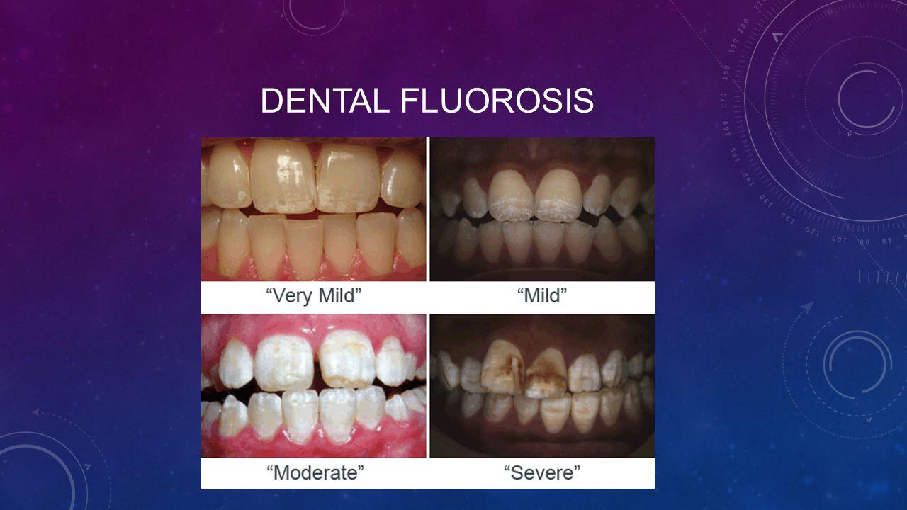 dental fluorosis Fluorosis dental 541 likes en esta pagina encontraras toda la información que necesites saber acerca de la fluorosis dental así como el diagnostico.