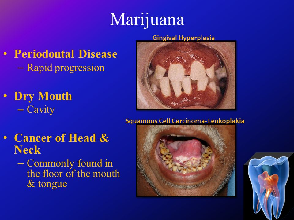 Welcome home welcome to oral health ppt video online for Floor of mouth cancer