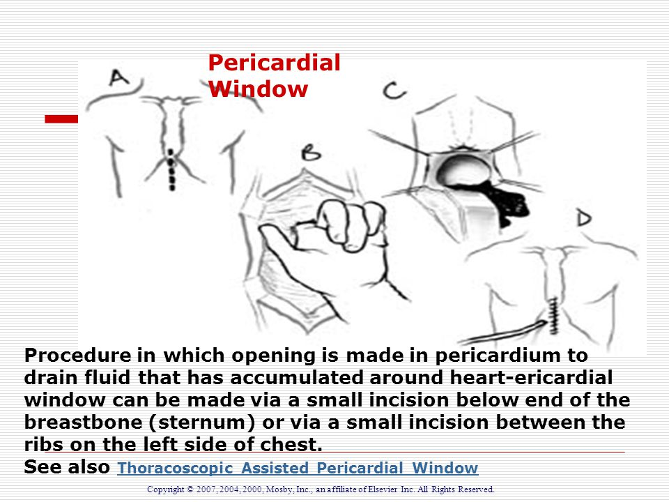 Inflammatory Disorders of the Heart - ppt download