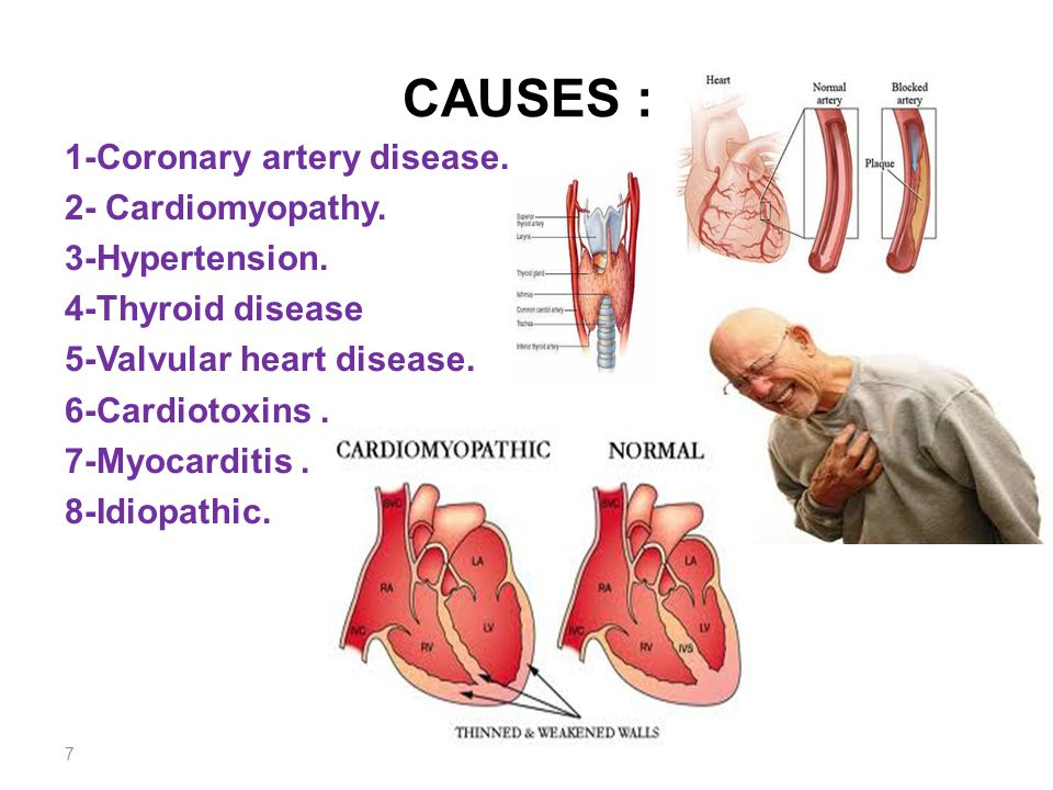 causes and effects of coronary heart disease Heart disease and stroke are cardiovascular (heart and blood vessel) diseases (cvds) 1 heart disease includes several types of heart conditions the most common type in the united states is coronary heart disease (also known as coronary artery disease), which is narrowing of the blood vessels that carry blood to the heart 2 , 3 this can cause.