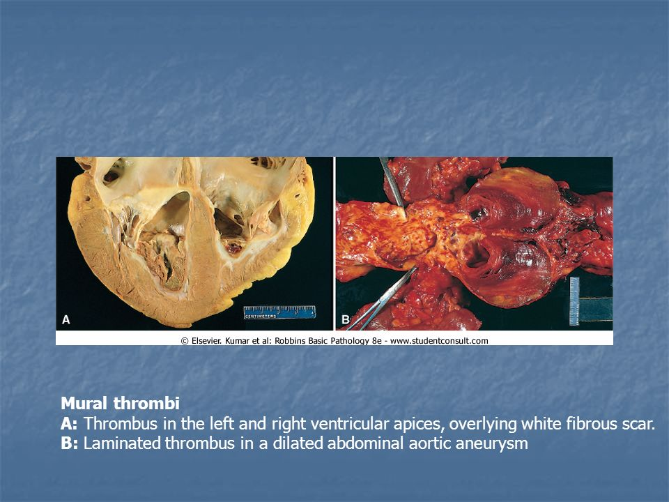 Disorders of vascular flow edema congestion hemorrhage for Abdominal aortic aneurysm mural thrombus