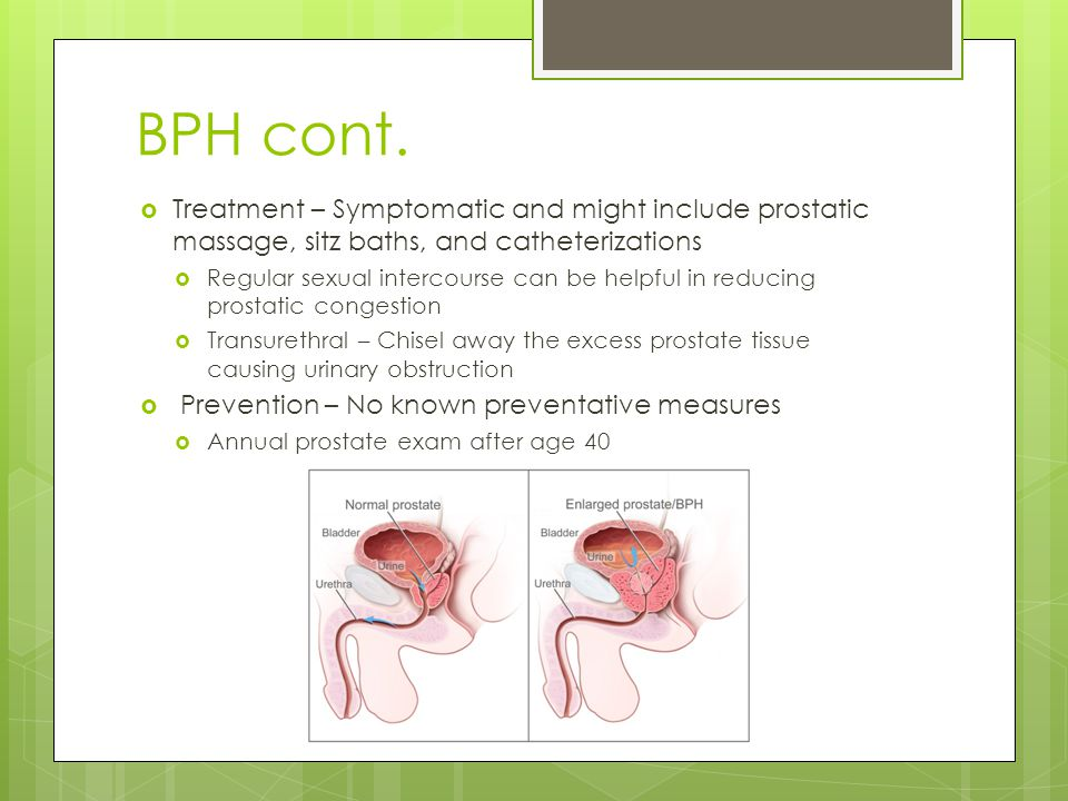 BPH cont. Treatment – Symptomatic and might include prostatic massage, sitz baths, and catheterizations.