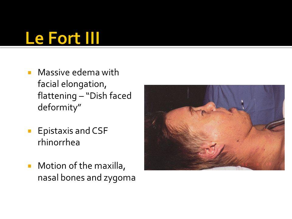 lefort 3 fracture line
