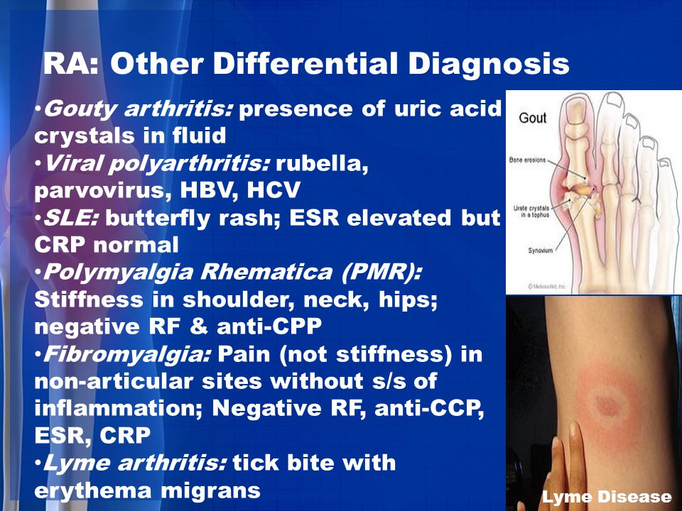 too much uric acid in urine cherry pills good for gout vegetables for uric acid patient