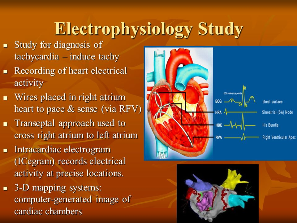 Basic cardiac electrophysiology and mechanisms of ...