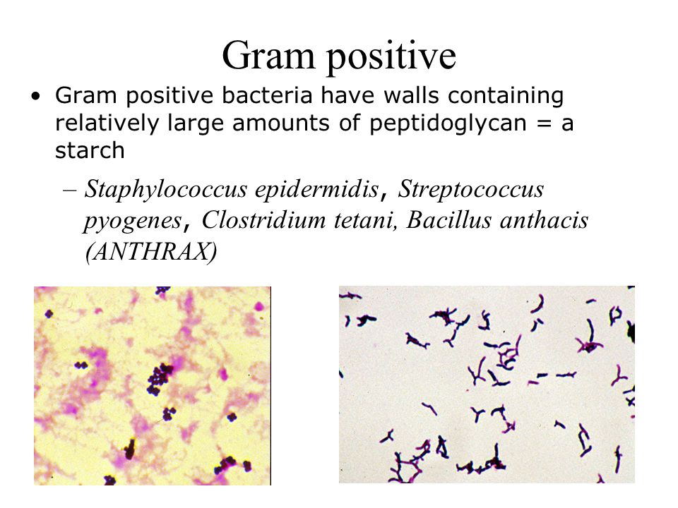 gram positive bacteria essay This lesson is going to define and characterize the major aspects of aerobic gram-positive bacilli you'll learn numerous examples of such bacteria.