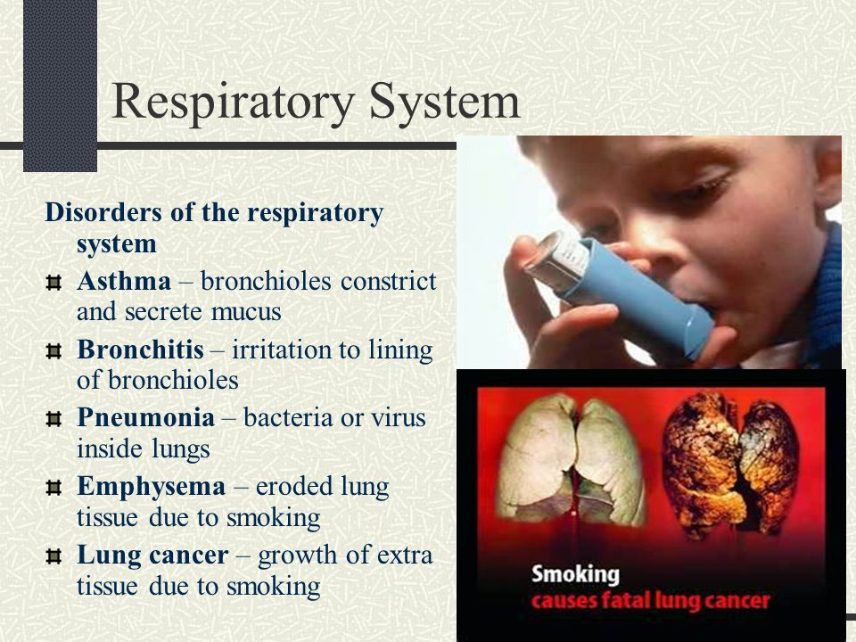 a description of asthma a respiratory system disorder Diseases of the respiratory system may affect any of the structures and organs that have to do with breathing, including the nasal cavities, the pharynx (or throat), the larynx, the trachea (or windpipe), the bronchi and bronchioles, the tissues of the lungs, and the respiratory muscles of the chest cage.