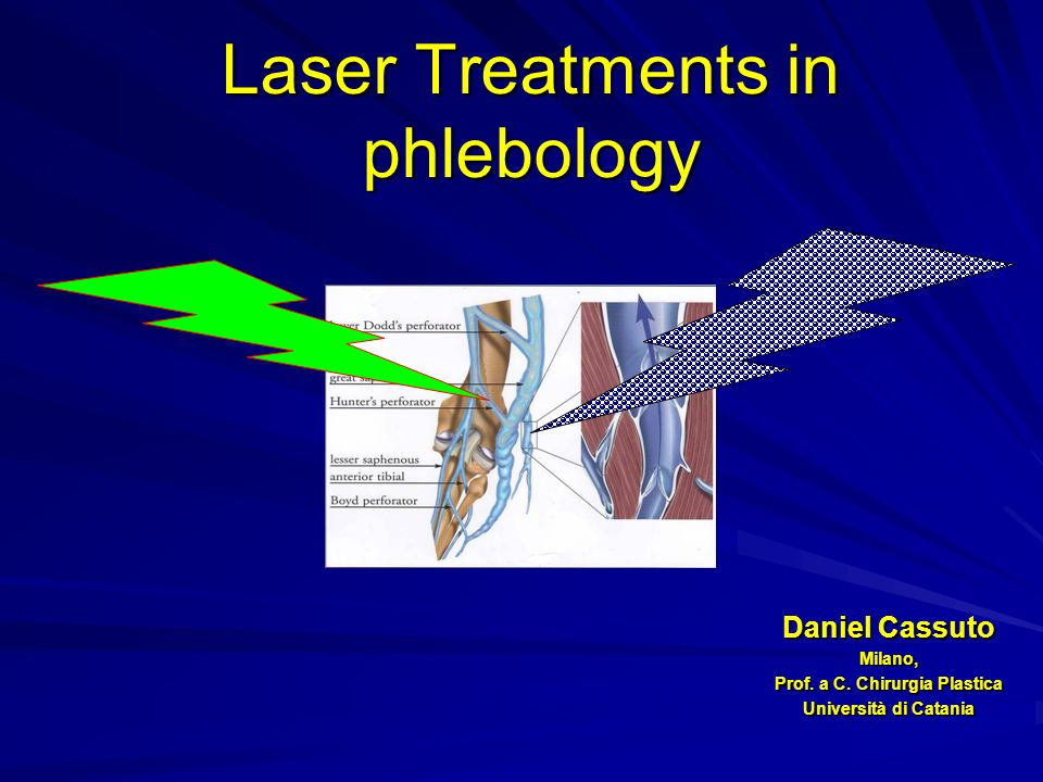 Laser Treatments in phlebology