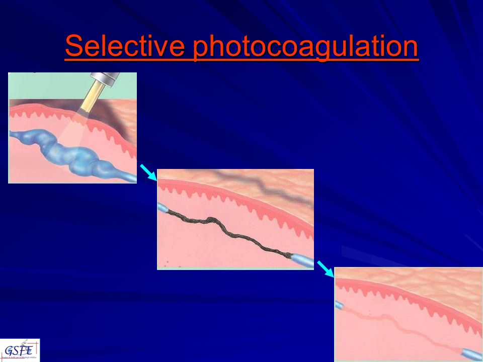 Selective photocoagulation