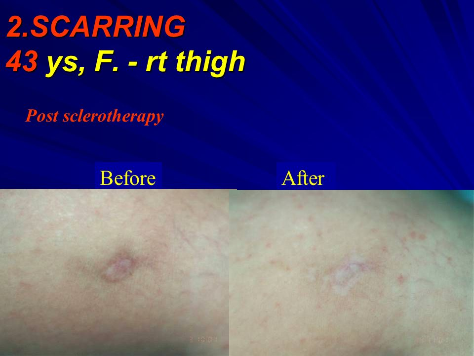 2.SCARRING 43 ys, F. - rt thigh Post sclerotherapy Before After