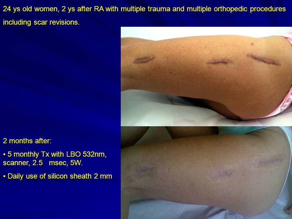 24 ys old women, 2 ys after RA with multiple trauma and multiple orthopedic procedures including scar revisions.