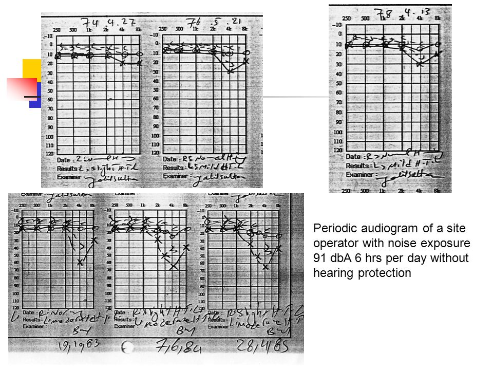 Periodic audiogram of a site operator with noise exposure 91 dbA 6 hrs per day without hearing protection