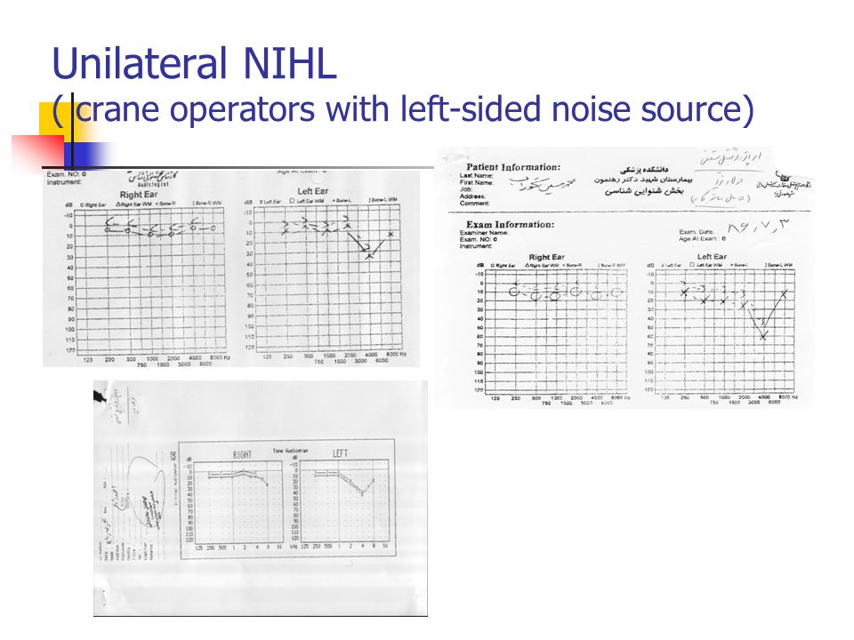 Unilateral NIHL ( crane operators with left-sided noise source)