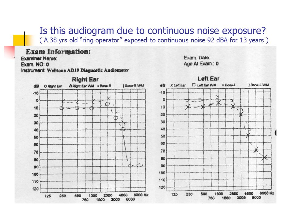 Is this audiogram due to continuous noise exposure