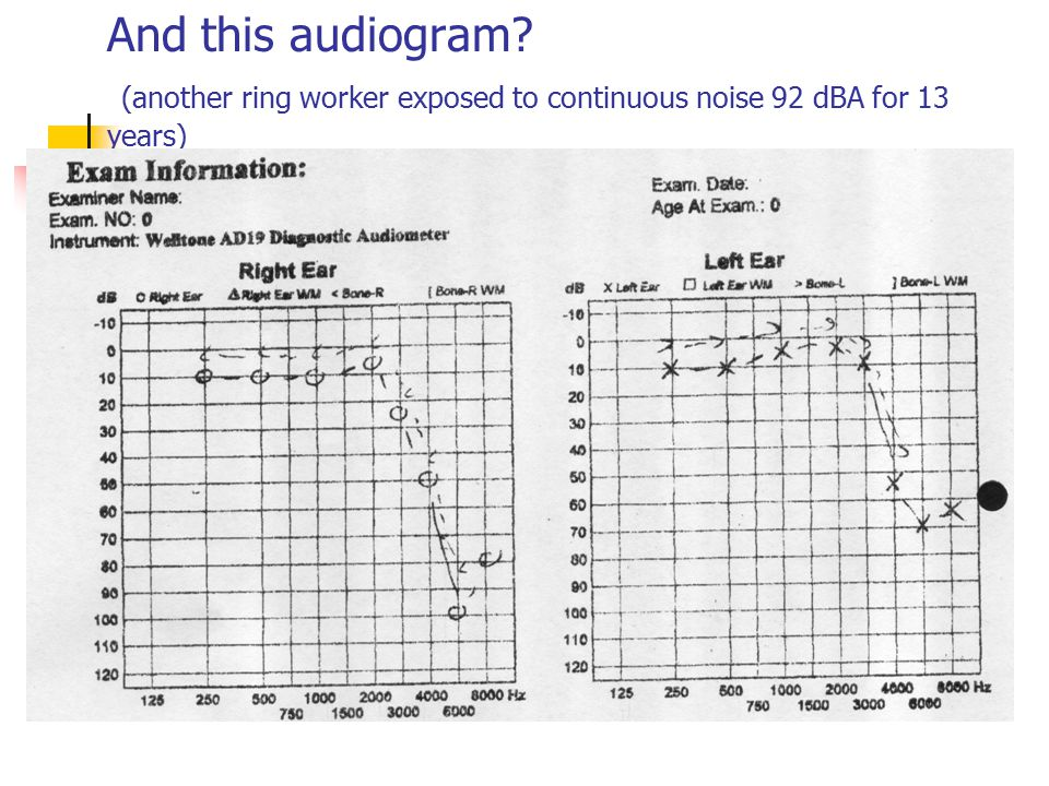 And this audiogram (another ring worker exposed to continuous noise 92 dBA for 13 years)