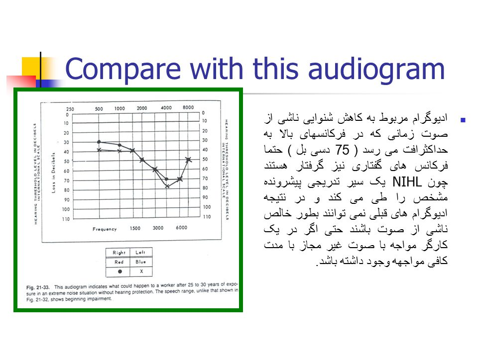 Compare with this audiogram