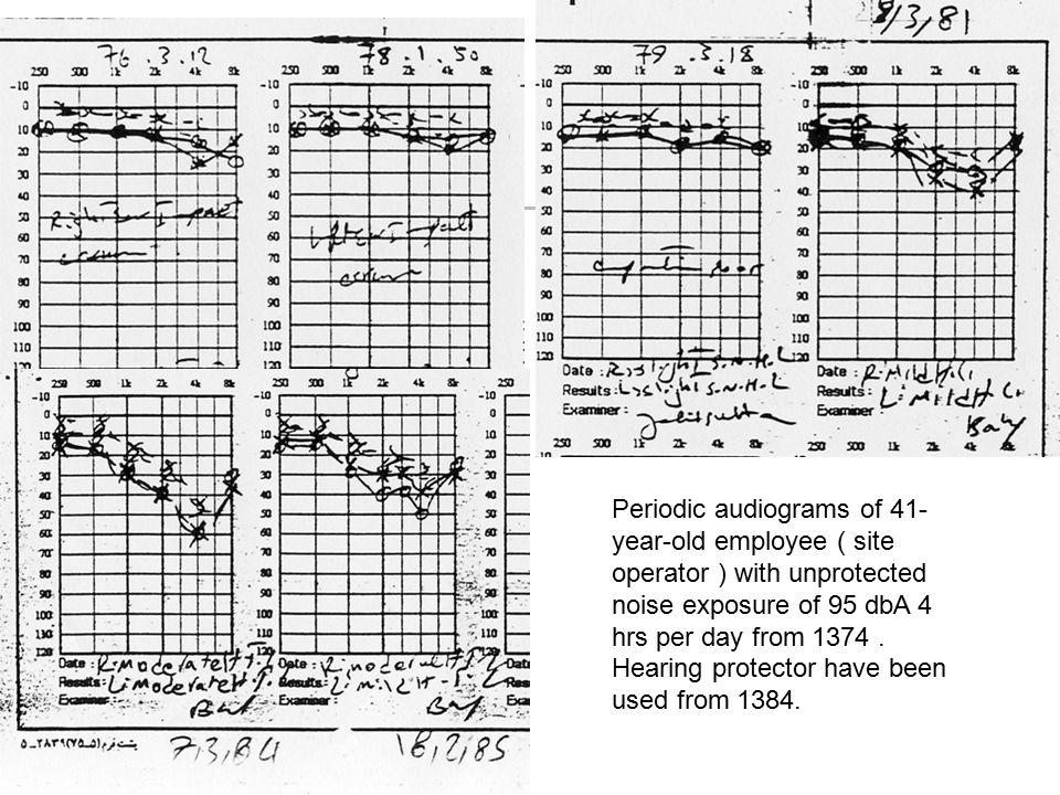 Periodic audiograms of 41-year-old employee ( site operator ) with unprotected noise exposure of 95 dbA 4 hrs per day from