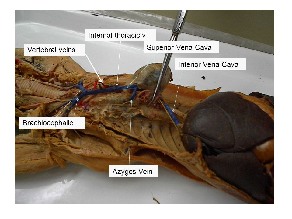 Internal thoracic v Superior Vena Cava. Vertebral veins.