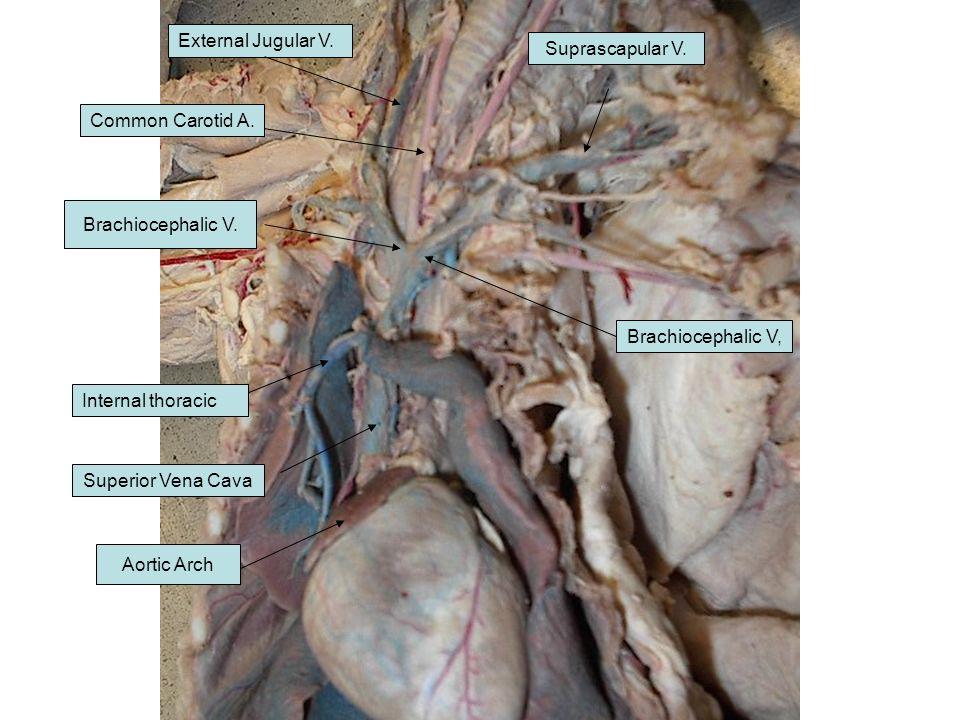 External Jugular V. Suprascapular V. Common Carotid A. Brachiocephalic V. Brachiocephalic V, Internal thoracic.