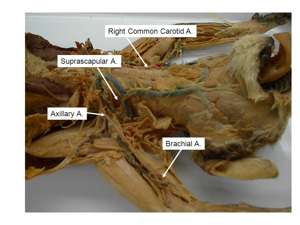 Right Common Carotid A. Suprascapular A. Axillary A. Brachial A.