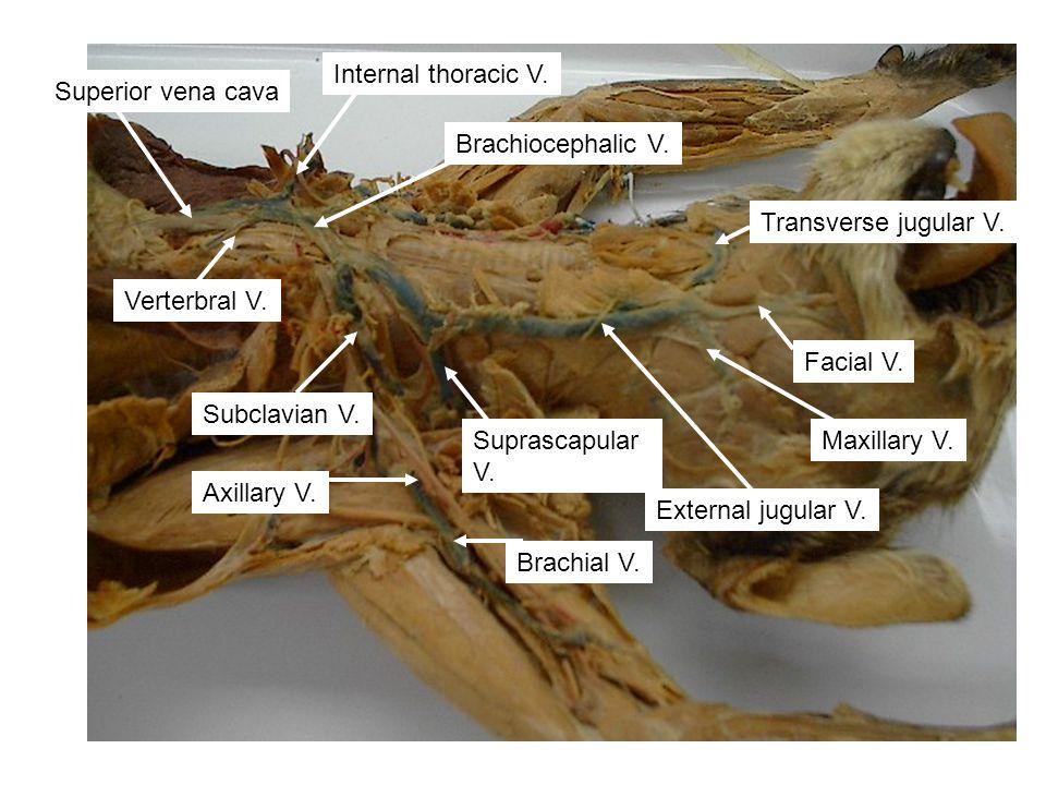 Internal thoracic V. Superior vena cava. Brachiocephalic V. Transverse jugular V. Verterbral V. Facial V.