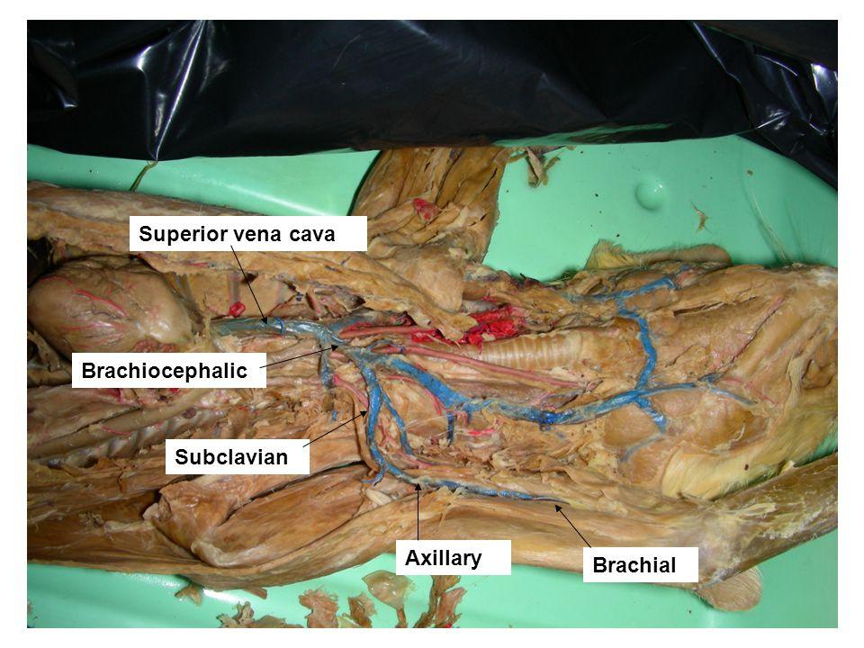 Superior vena cava Brachiocephalic Subclavian Axillary Brachial