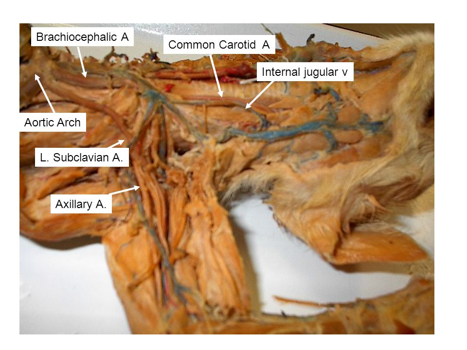 Brachiocephalic A Common Carotid A. Axillary A. Internal jugular v. Aortic Arch. L. Subclavian A.