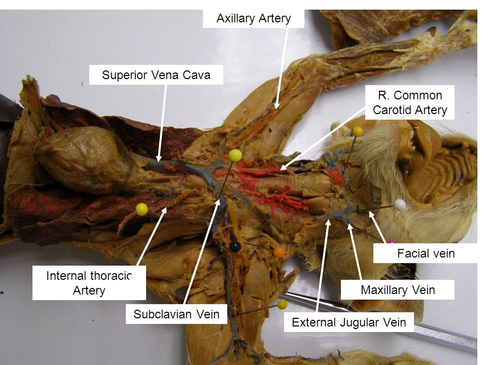 R. Common Carotid Artery