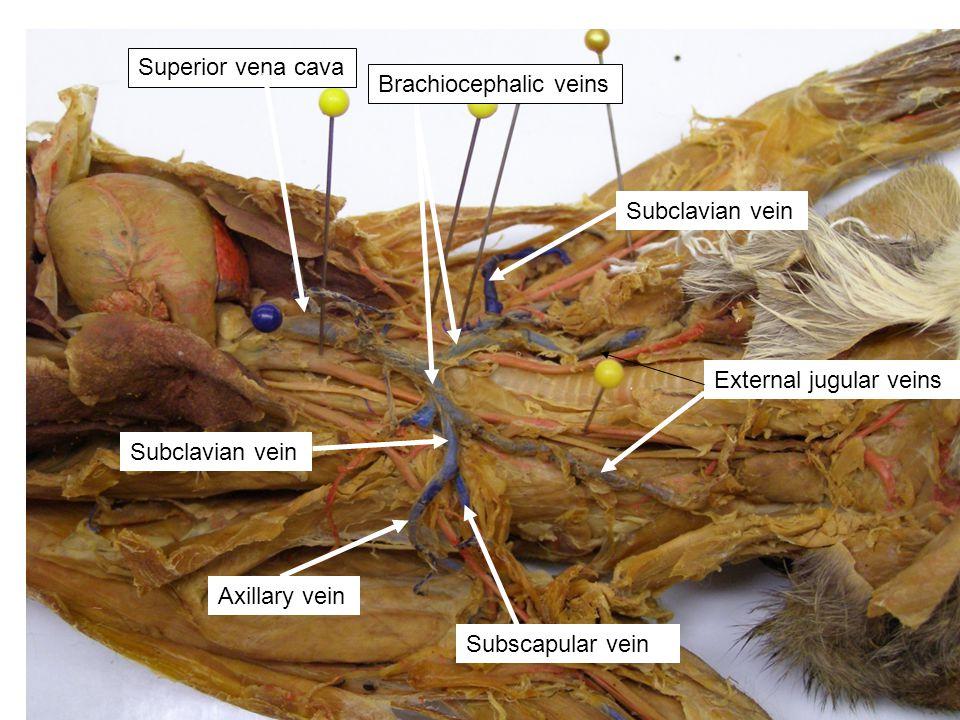 Superior vena cava Brachiocephalic veins. Subclavian vein. External jugular veins. Subclavian vein.