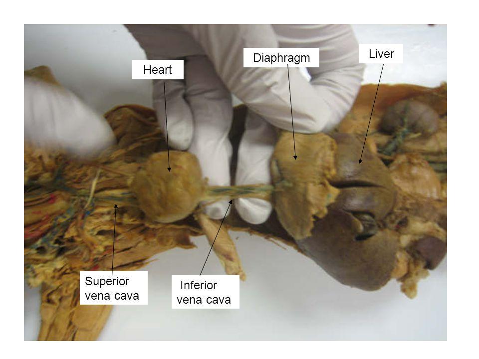 Liver Diaphragm Heart Superior vena cava Inferior vena cava
