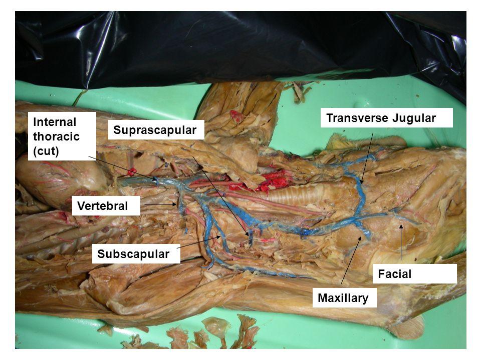Transverse Jugular Internal thoracic (cut) Suprascapular Vertebral Subscapular Facial Maxillary