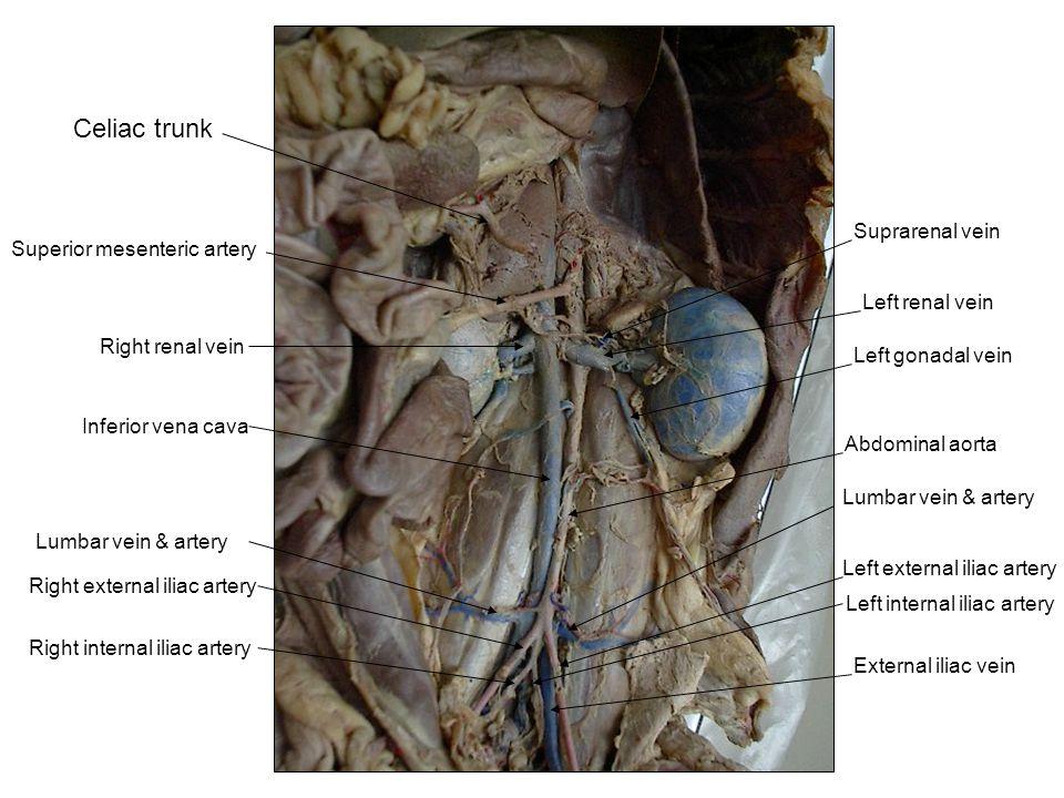 Celiac trunk Suprarenal vein Superior mesenteric artery
