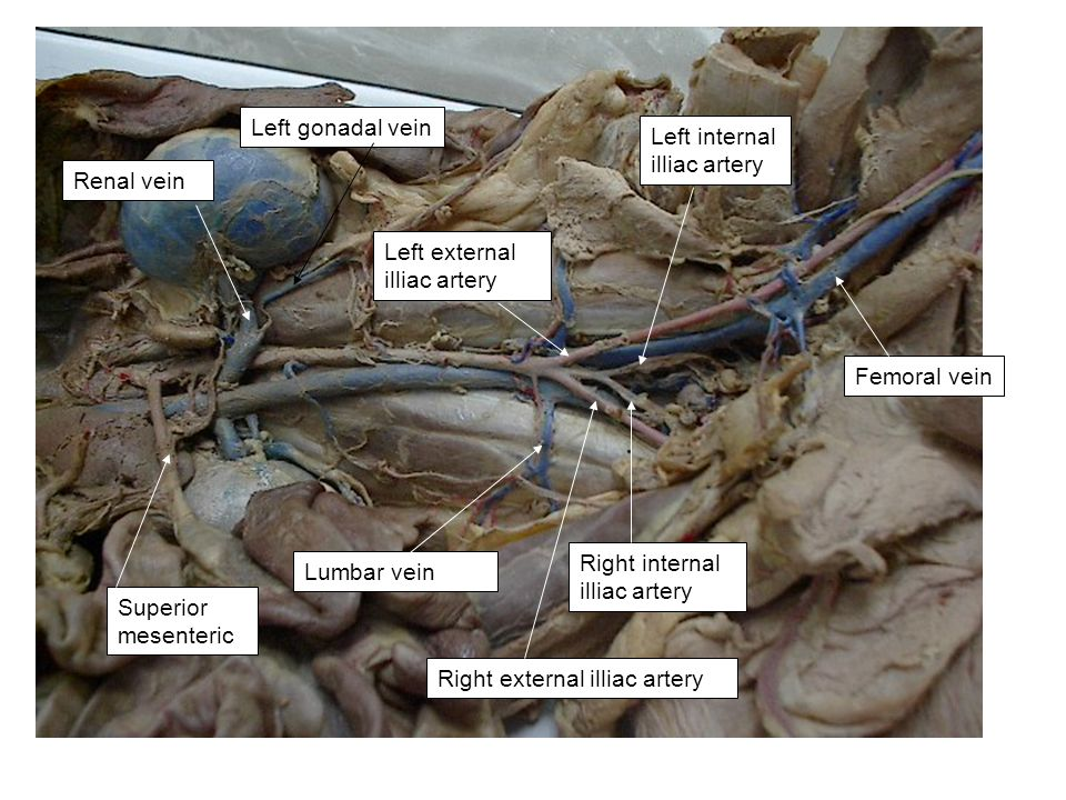 Left gonadal vein Left internal illiac artery. Renal vein. Left external illiac artery. Femoral vein.