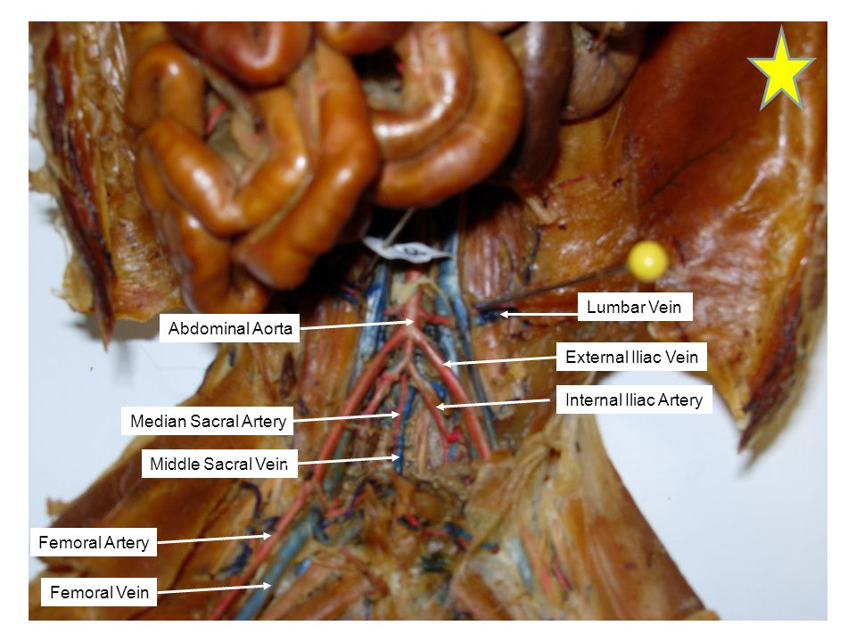 Lumbar Vein Abdominal Aorta. External Iliac Vein. Internal Iliac Artery. Median Sacral Artery. Middle Sacral Vein.