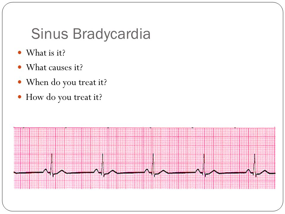 Cardiac Arrhythmias A ...