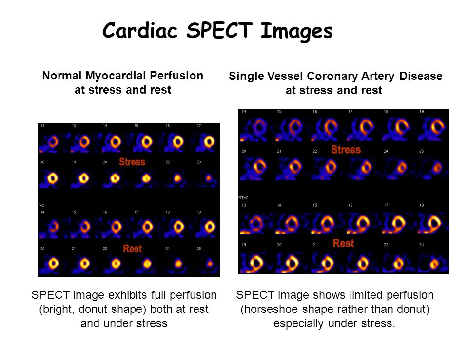 Normal Myocardial Perfusion Single Vessel Coronary Artery Disease