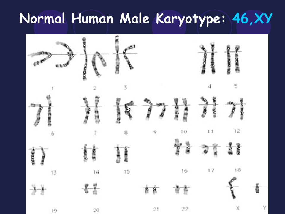 Normal Human Male Karyotype: 46,XY