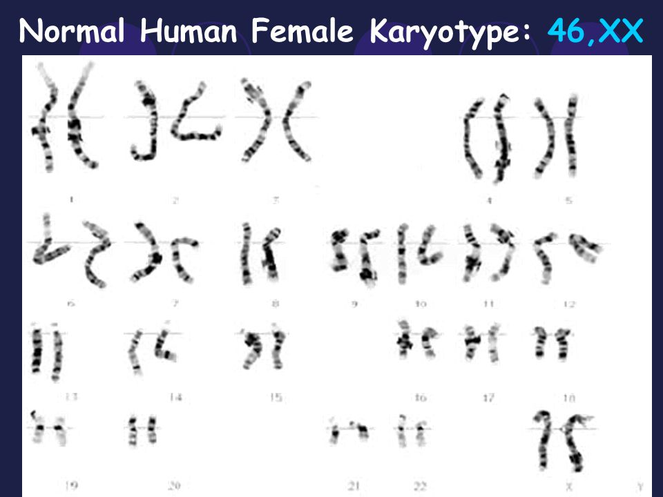 Normal Human Female Karyotype: 46,XX