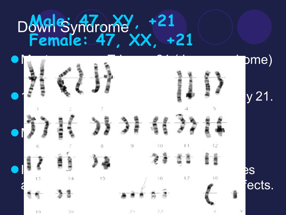 Male: 47, XY, +21 Female: 47, XX, +21 Down Syndrome